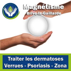 Magnétisme - Traiter les dermatoses
